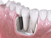 dental-implant1