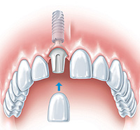 dental-implant3