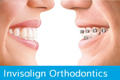 Invisalign – Orthodontics